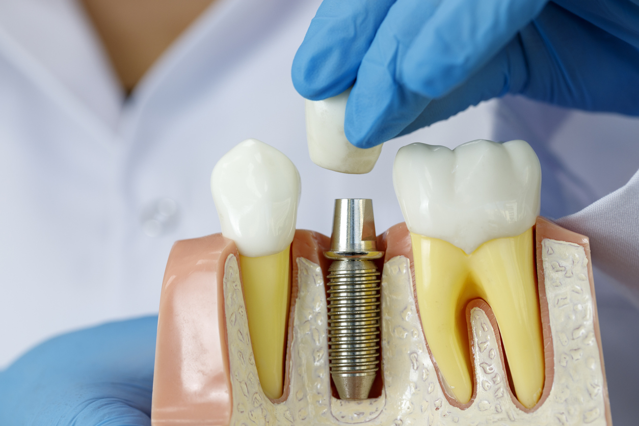 Doctor showing dental implant